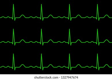 Ekg lines. Heartbeat. Electrocardiography. Seamless pattern. Healthy heart. Medical design. Vector illustration.
