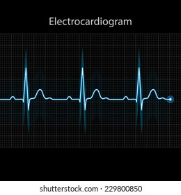Electrocardiogram 2d illustration on black background, vector, eps 10