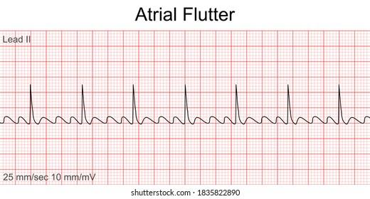 Electrocardiogram show Atrial flutter pattern. Cardiac fibrillation. Heart beat. CPR. ECG. EKG. Vital sign. Life support. Defib. Emergency. Medical healthcare symbol.