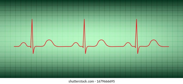 Electrocardiogram show normal heart beat line (Sinus rhythm).Vital sign.Medical healthcare concept.