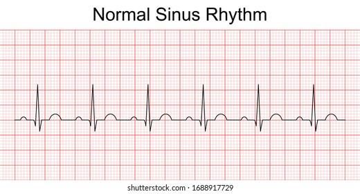 Electrocardiogram show normal heart beat line (Sinus rhythm). ECG. EKG. Vital sign. Medical healthcare symbol.