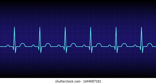 Electrocardiogram show normal heart beat line (Sinus rhythm) isolated on dark blue background.Vital sign.Medical healthcare concept.