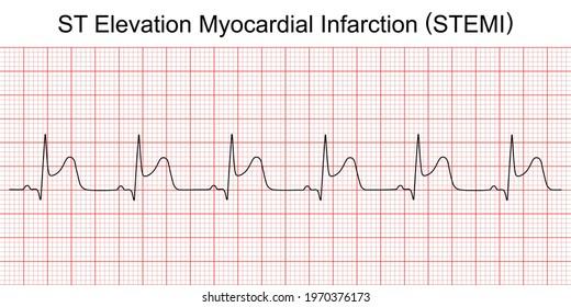 Electrocardiogram show ST elevation myocardial infarction (STEMI) pattern. Heart attack. Ischemic. Coronary artery disease. Angina pectoris. Chest pain. ECG. EKG. Medical health care.