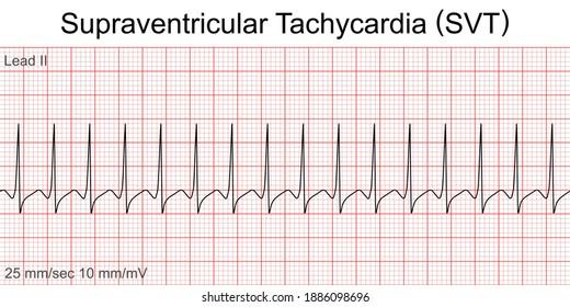 Electrocardiogram show Supraventricular tachycardia (SVT) pattern. Cardiac fibrillation. Heart beat.ECG. EKG.Vital sign.Life support.Defib. Emergency. Medical healthcare symbol.