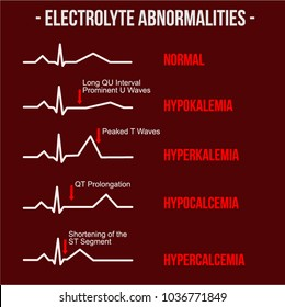 Electrolyte Abnormalities ECG and Cardiology Study. Easy to edit with eps 8.