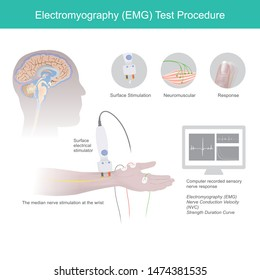 Electromyography Test Procedure. The illustrate explain Use of medical electrical tools to checking for neuromuscular disease, By using stimulation from electrical signals.