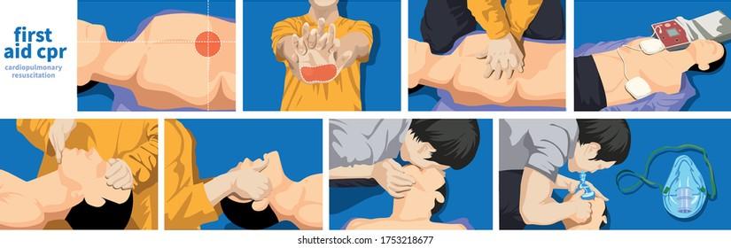 Emergency first aid emergency rescue cardiopulmonary procedures vector art