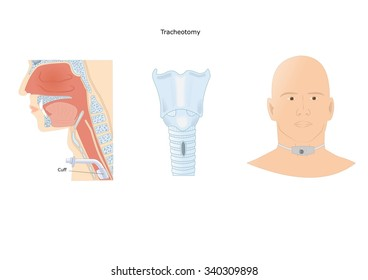 emergency surgery: tracheotomy, to let the patient breath