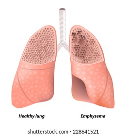 Copd stock images royalty free images vectors shutterstock chronic obstructive pulmonary disease diagram showing a cross section of normal lung ccuart Images