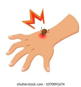 Encephalitis tick bites the hand isolated on white background