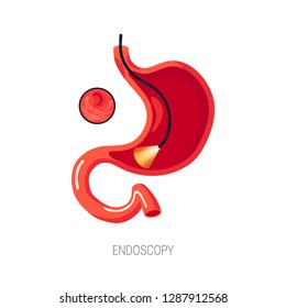 Endoscopy diagnostic concept. Human stomach with endoscope inside. Vector illustration in flat style.