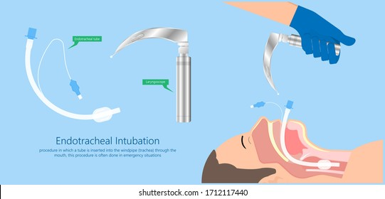 Endotracheal intubation ICU care unit COVID 19 larynx  throat rescue surgery mouth Tube trachea breathe ventilation deliver oxygen lungs insert sedate rest airway foreign body removal block aspiration