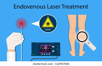 endovenous laser ablation