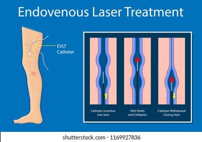 endovenous laser ablation