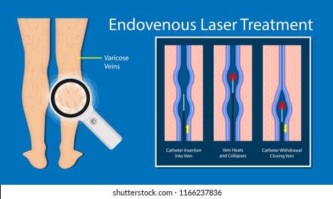 endovenous laser treatment