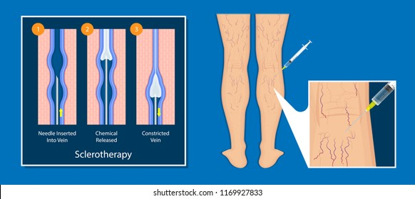 endovenous laser treatment CVD treat ELT legs inject EVLT varicose veins