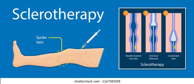 endovenous laser treatment therapy