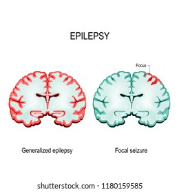 Epilepsy. Brain Sections. primary generalized epilepsy and focal seizures. Vector diagram for educational, medical, biological and science use