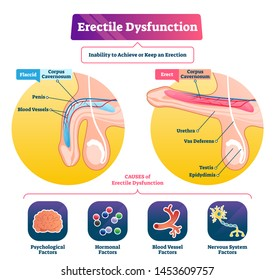 Erectile dysfunction vector illustration. Labeled impotence explain scheme. Medical illness with sexual male issues. Fertility potency problem and flaccid penis disorder. Corpus cavernosum lift state.