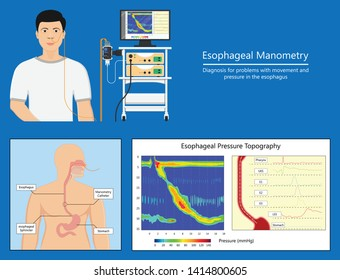 Esophageal manometry test esophageal diagnose food high resolution impedance HRM difficulty swallowing Achalasia treat acid