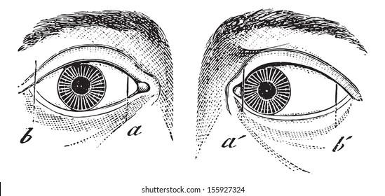 Esotropia of the left eye, vintage engraved illustration. Usual Medicine Dictionary by Dr Labarthe - 1885.
