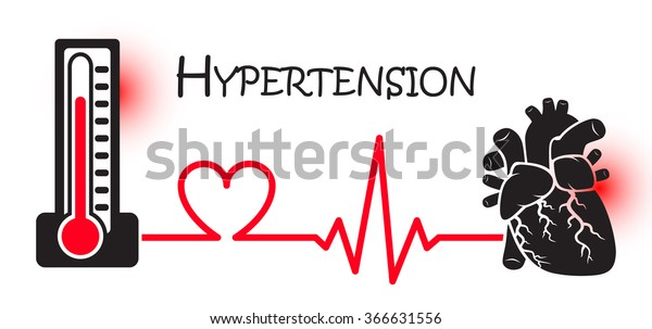 ¿La presión arterial muestra un ataque al corazón?