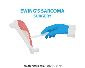 Ewing's sarcoma surgery vector illustration isolated on white background in flat design. Medical infographic elements with surgeon's hand keeping scalpel and doing surgery and removing cancer tumor.