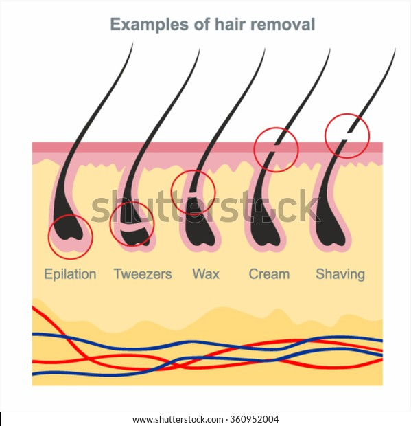 Examples of hair removal: waxing, shaving, tweezers, creams, wax