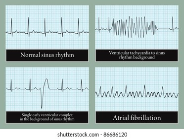 Examples of normal and abnormal ECG. Vector. Professional information.