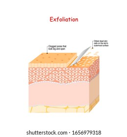 Exfoliation. Peeling or Physically scrubbing. Skin Care. Close up Of Peeling procedure. Cosmetology. Exfoliation is removal of the old dead cells on the skin's outer surface. Cross-section skin layers