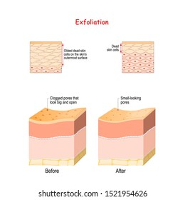 Exfoliation is removal of the old dead skin cells on the skin's outer surface. Cross-section of skin layers before and after Exfoliation. Close-up of epidermal cells.