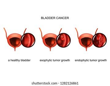 exophytic and endophytic growth of cancer in the bladder