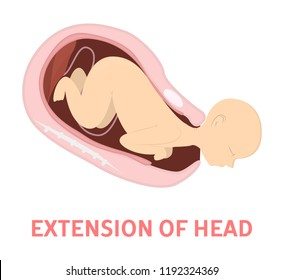 Extension of baby head in vaginal delivery. Fetus movement during the labor. Biology and gynecology. Child birth process. Isolated vector illustration