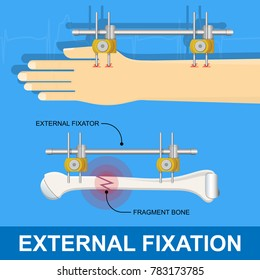 External Fixation High Res Stock Images Shutterstock