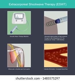 Extracorporeal Shockwave Therapy. The illustrate explain benefit of the instrument for medical use, by treatment elbow pain and shoulder pain from sports tennis or golf.