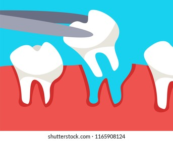 Extracted tooth in tongs.Vector illustration.CONCEPT OFFICE OF THE DENTIST.