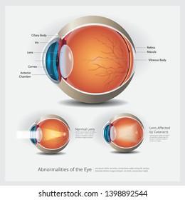 Eye Anatomy with Eye Abnormalities Vector Illustration
