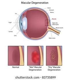 Eye condition: macular degeneration