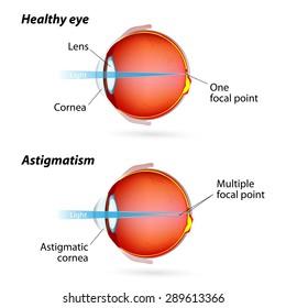 Eye disease. Healthy eye and Astigmatic eye