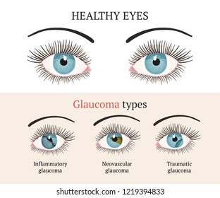 Eye disease. Ophthalmology flat health vector illustration. Glaucoma types ans healthy eye. Vector flat eye healt illustration. Glaucoma chronic eye pathology.