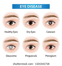 Eye diseases vector illustration
