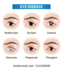 Eye diseases vector illustration