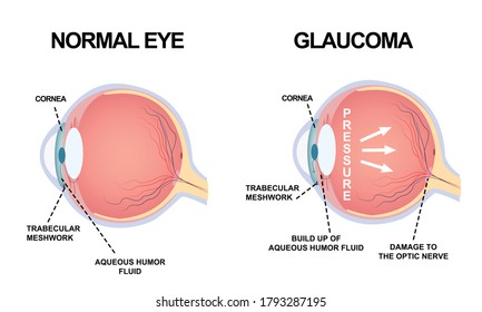 Eye structure. Anatomy of an eye defect, Glaucoma