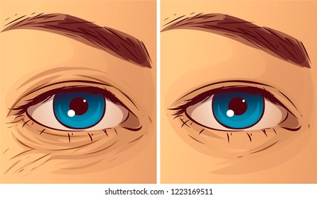 Eye wrikles, before-after. Vector illustration