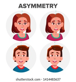 Eyes Asymmetry Of Character Man And Girl Vector. Young Boy Male And Woman Female Ptosis Eyelid Asymmetry. Before And After Operating Plastic Correction Surgery Flat Cartoon Illustration