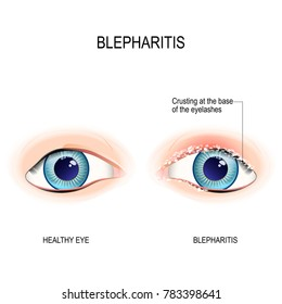 Eyes of human. Blepharitis. Crusting at the eyelid margins (base of the eyelashes) due to excessive bacterial buildup along the lid margins. Human anatomy. Vector diagram for educational, and medical