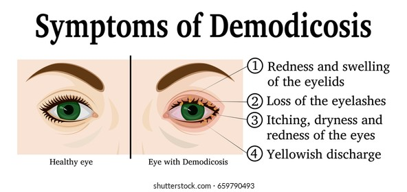 Eyes of a young woman with symptoms of Demodicosis
