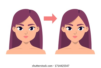 Face contour plastic surgery vector isolated. V-line jaw reduction. Beauty procedure. Face lift before and after.