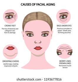 Face of girl demonstrating key areas of facial aging