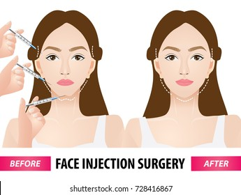 Face injection surgery before and after vector illustration